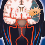Hypothyroidism in the brain protects from cell death in stroke