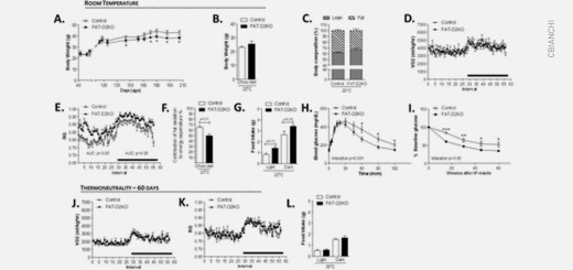 Tissue-specific inactivation of type II deiodinase reveals multi-level control of fatty acid oxidation by thyroid hormone in the mouse