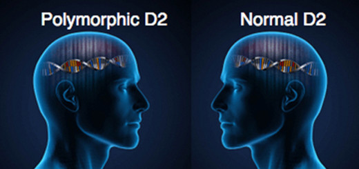 D2 gene polymorphism affects the brain- not all hypothyroid patients are the same