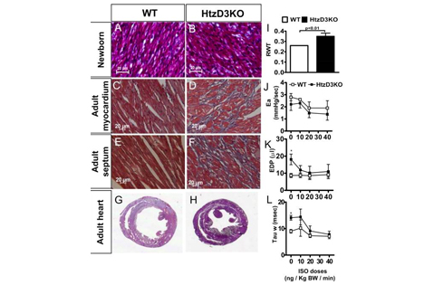 Absence of myocardial thyroid hormone inactivating deiodinase results in restrictive cardiomyopathy in mice